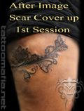 1ST SESSION COVERING SCAR - WORK IN PROGRESS