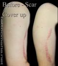 BEFORE IMAGE OF SCAR ON UPPER ARM
